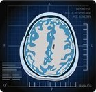 MRI Scan,X-ray Image,Human Brain,Isolated On Black,Radiologist,Medical Scan,Epilepsy,Brain Surgery,Black Background,Vector,Anatomy,Illness,Diagnostic Medical Tool,Bone Fracture,fluorography,Science,The Human Body,Neurological Examination,Research,Healthcare And Medicine,Ilustration,Teaching,Medical Scanner
