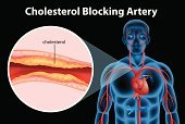 Cholesterol,Heart Attack,Steroids,Stent,Angioplasty,Endothelial,Backgrounds,Sclerosis,Clipping Path,Atherosclerosis,Computer Graphic,Vector,Hypercholesterolemia,Illness,Heap,Collection,Nautical Vessel,Aggression,Blood Flow,Image,build up,Catheter,Statin,Heart Disease,Coronary Artery,Rudeness