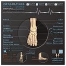 Infographic,Human Bone,Anatomy,Human Foot,Healthcare And Medicine,X-ray Image,Part Of,Design Element,Image,Human Nervous System,Computer Graphic,Camera Film,Label,Chart,Clock,Data,Education,Human Internal Organ,Symbol,Human Finger,Concepts,Doctor,Creativity,template,Abstract,Ilustration,Graph,Pattern,People,Science,Sign,Time,Backgrounds,Syringe,Pill,Diagram,Banner,Women,Ideas,Art,Wave Pattern,Hospital,Vector,Design
