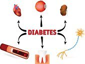Diabetes,Intricacy,metabolism,Glucose,Nephropathy,mellitus,Retinopathy,hyperglycemia,Anatomy,Illness,Urine,Stroke,Order,Human Artery,Kidney,Human Heart,Blood,People,Blood Flow,Care,Medical Exam,Damaged,Nautical Vessel,Complexity,Human Eye,Human Internal Organ,Cardiomyopathy,affected,Blood Pressure Gauge,Small,Failure,The Human Body,Healthcare And Medicine,Human Nervous System,Urinary System,Physical Injury,Diagram