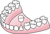 Dentures,Root,Medicine,Isometric,implantation,Human Teeth,Prosthetic Equipment,White,Technology,Implant,Voice,Disassembling,Body Care,abutment,Three Dimensional,Tooth Crown,Dental Health,Enamel,Dentist,Healthcare And Medicine