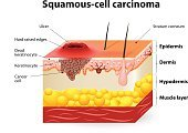 squamous,Keratinized Cell,Human Skin,Human Cell,Cancer Cell,Basal Cell,Cancer,Dermatology,People,The Human Body,Virus,Human Papilloma Virus,Epithelioma,Patient,Healthcare And Medicine,Care,Pimple,Anatomy,Metastasis,symptoms,Stratum Corneum,Papilloma,Pre-Cancerous,Ulcer,Spotted,pigmentation,Skin Condition,scab,Illness